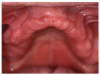 An upper denture ridge with good morphology.
