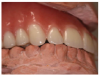 Contact is limited to the lingual cusps of the upper posterior teeth.