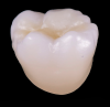 Fig 13. Monolithic molar crown fired at the ideal temperature determined to develop optimal translucency.