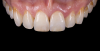 Fig 22. Images of complete monolithic cubic zirconia crowns (tooth No. 9). Fig 26. Image of complete monolithic lithium-disilicate crown (tooth No. 9) that served as a control.