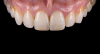 Fig 23. Images of complete monolithic cubic zirconia crowns (tooth No. 9). Fig 26. Image of complete monolithic lithium-disilicate crown (tooth No. 9) that served as a control.
