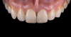 Fig 25. Images of complete monolithic cubic zirconia crowns (tooth No. 9). Fig 26. Image of complete monolithic lithium-disilicate crown (tooth No. 9) that served as a control.