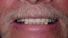 Fig 1. Two implants are placed in the mandible, followed by two healing abutments.