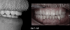 Fig 24. The maxillary denture is placed, and the mandibular telescopic partial is carefully placed and seated.