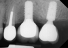 Fig 4. Comparison of implant placement depths, which are dependent on the implant design: a tissue-level implant is shown replacing the maxillary first molar, and a deeper placement depth using an implant system with a platform-switching feature is shown replacing the second molar.